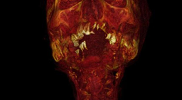 A coronal 3D volume rendered CT reconstruction showing carotid artery disease (PA/Lancet)