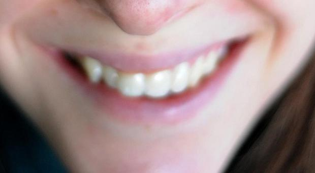 Scientists investigated the 'laughter perception network' in volunteers