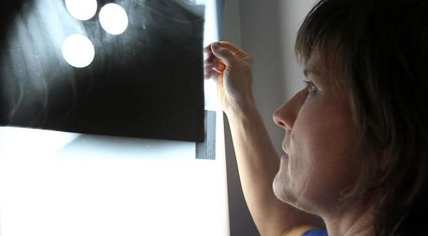 Vet Kath Vandamme holding an X-ray showing golf balls inside doberman Azar (John Hipkiss/PDSA/PA)