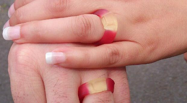 The hands of David Norris and his new wife Natalie Norris-Lee, who tied the knot with Haribo sweets after their rings were stolen
