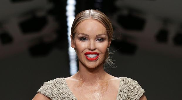 Katie Piper is back in hospital after complications following surgery