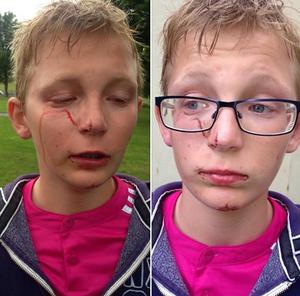 A Polish schoolboy has suffered an injury to his face following a fight with an eight-year-old boy in a suspected racist attack in Warrenpoint.