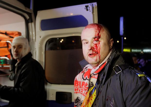 Injured protesters look for medical help in ambulance after Ukrainian riot police broke up a rally demanding the resignation of President Viktor Yanukovych, at the Independence Square in downtown Kiev, Ukraine, on Saturday, Nov. 30, 2013. Police in the Ukrainian capital broke up a large anti-government demonstration in the city center before dawn Saturday, swinging truncheons and injuring many. (AP Photo/Sergei Chuzavkov) (AP Photo/Sergei Chuzavkov)