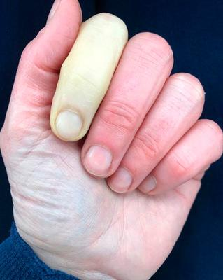 Alarming sight: the photo that Jenni Falconer tweeted of her hand
