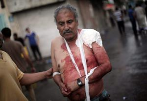 A Palestinian man leaves the Kamal Adwan hospital in Beit Lahiya after receiving treatment for his wounds caused by an Israeli strike at a UN school in Jebaliya refugee camp, northern Gaza Strip, Wednesday, July 30, 2014. (AP Photo/Khalil Hamra)