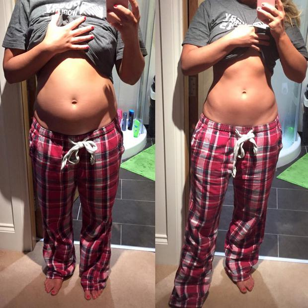 Former Miss Northern Ireland Tiffany Brien has shared photographs online to illustrate her battle with bloating