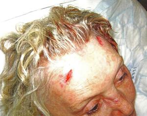 Some of the injuries suffered by Geraldine Winner (Metropolitan Police/PA)