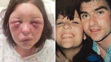 Terri-Louise Graham was left with a swollen and bruised face after a vicious beating from her partner Greg Logue.