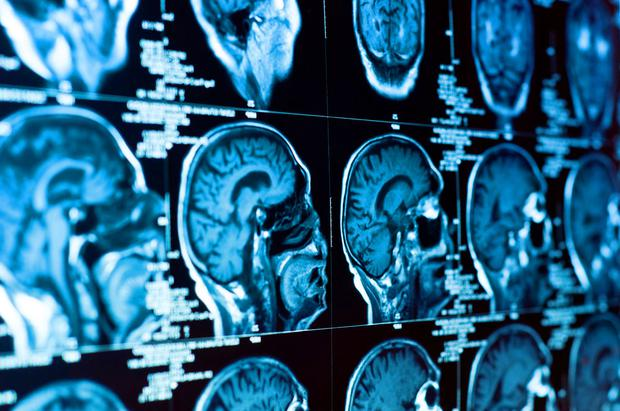 Dementia levels in the UK are stabilising, according to reports