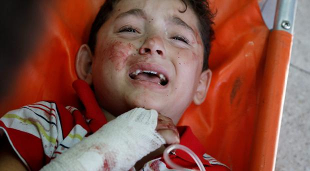 A Palestinian child, wounded in an Israeli strike on a compound housing a U.N. school in Beit Hanoun, in the northern Gaza Strip, cries at the emergency room of the Kamal Adwan hospital in Beit Lahiya, Thursday, July 24, 2014. (AP Photo/Lefteris Pitarakis)