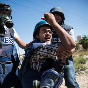 A member of the media holds his arm after being injured while covering Palestinian supporters of Hamas clash with Israeli security forces on July 25, 2014 near Ramallah, West Bank. (Photo by Andrew Burton/Getty Images)
