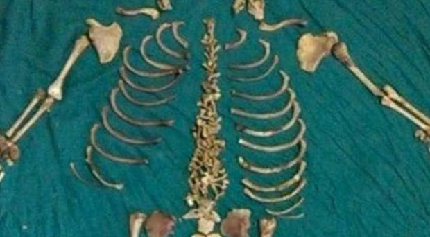 The re-arranged skeleton of the foetus