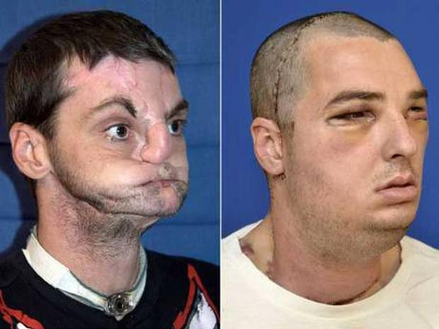 Richard Norris is seen before (left) and immediately after his face transplant surgery