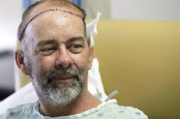 Jim Boysen's cancer treatment left him with an open wound in his head that would not heal