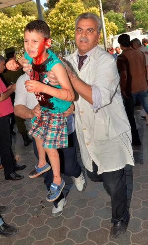 A Syrian doctor carries a wounded child outside al-Razzi hospital after a Syrian rebel rocket reportedly struck a government-held part of the northern Syrian city of Aleppo on June 15, 2015. AFP/Getty Images