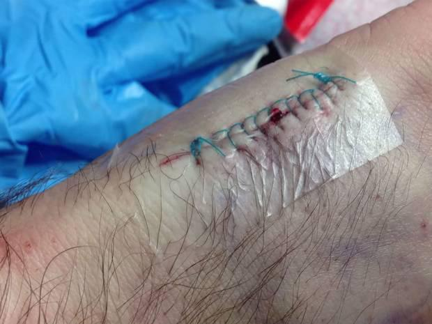 The scar Vlad Zaitsev was left with after implanting his travel card into his hand (Image: YouTube/Madrobots.Ru)