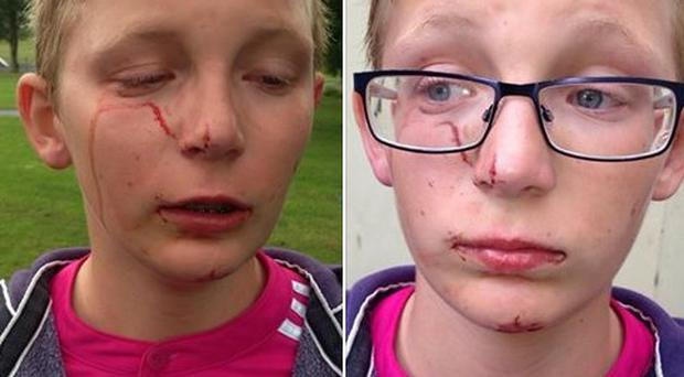 A Polish schoolboy has suffered an injury to his face following a fight with an eight-year-old boy in a suspected racist attack in Warrenpoint. Pic: Social media