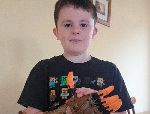 Josh McKenna pictured with his new hand which was 3D printed. Photo: The Anton Savage Show