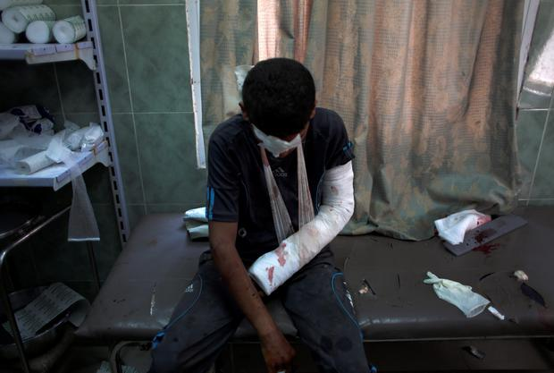 An injured Palestinian boy rests after receiving treatment for his injuries at the Najjar hospital in Rafah, southern Gaza Strip, Thursday, Aug. 6, 2015. (AP Photo/ Khalil Hamra)
