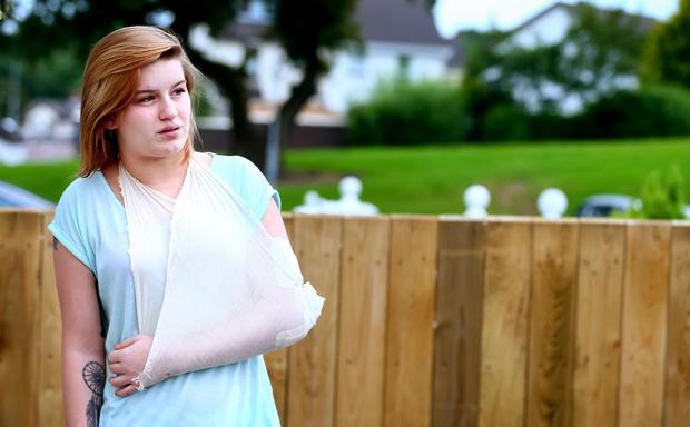 Sinead Quinn who was attacked in a local take away following a night out with friends. Picture: Kevin Scott