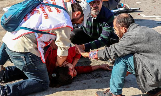 Victims at the blast scene after an explosion during a peace march in Ankara, October 10, 2015 Turkey. (Photo by Gokhan Tan/Getty Images)
