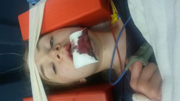 Catriona Lilley suffered a fractured jaw in the crash. Pic: BBC