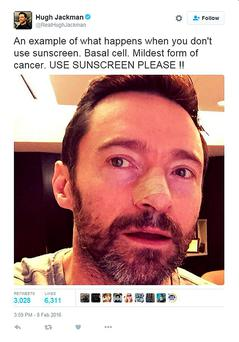 Hugh Jackman took to social media to warn fans of the dangers of not wearing sunscreen