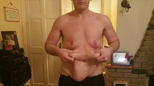 Patrick Coyle needs surgery to remove the excess skin after his weight loss