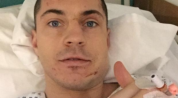 On the mend: Scott Quigg after surgery on his broken jaw