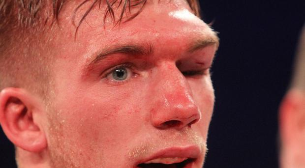 Pain game: Eye injury to Nick Blackwell before his hospitalisation