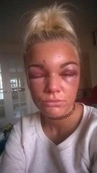 Kirsty Morrison Beaten by ex partner Caolim Baker