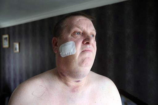 Dan Murray who was shot in the face in his north Belfast home.