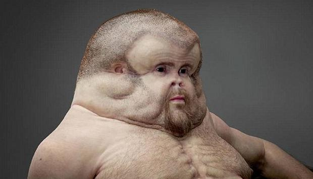 Patricia Piccinini's Graham has a huge head, no neck and a few extra nipples