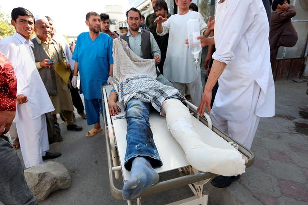 Afghans help an injured man after an explosion struck a protest in Kabul, Afghanistan, Saturday, July 23, 2016. Witnesses in Kabul say that an explosion struck the protest march by members of Afghanistan's largely Shiite Hazara ethnic minority group, demanding that a major regional electric power line be routed through their impoverished home province. (AP Photo/Rahmat Gul)