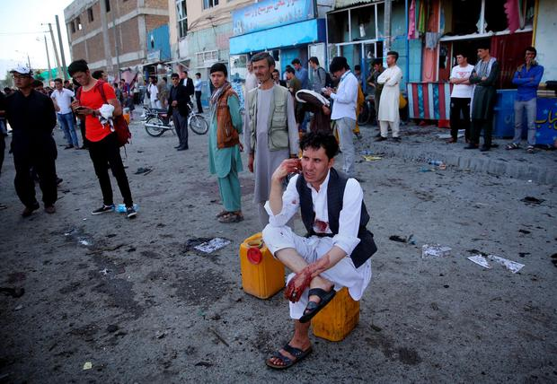 A bloodied man who carried dead and wounded, speaks on the phone at the site of a suicide attack an explosion that struck a protest march, in Kabul, Afghanistan, Saturday, July 23, 2016. (AP Photo/Massoud Hossaini)