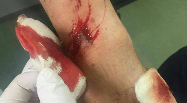 The PSNI officer required stitches for his wounds.