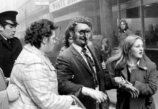 An injured man is led away after the bombing of the Abercorn restaurant in Belfast in 1972, just one of countless atrocities police had to deal with during the Troubles