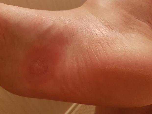 A spider bit the bottom of Kelly's foot and it became infected