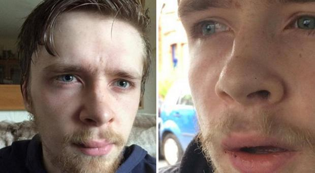 Gary McKendry was left with facial injuries after his good deed