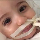 Baby Marwa had been diagnosed with a brain-damaging virus