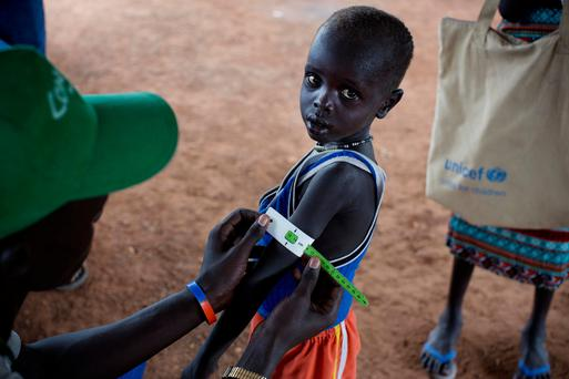 A boy has his arm measured to see if he is suffering from malnutrition. (Kate Holt/UNICEF via AP)