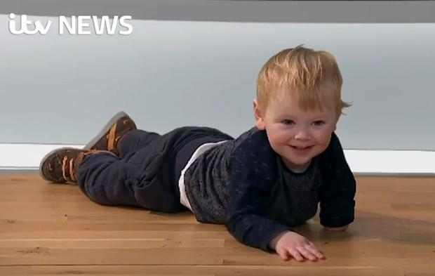 Sol's arm was amputated shortly after birth when doctors discovered a blood clot. Image: ITV News