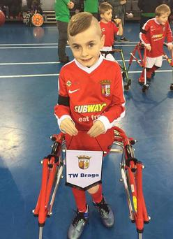 Young Oliver Dickey suffers from the spastic diplegia form of cerebral palsy