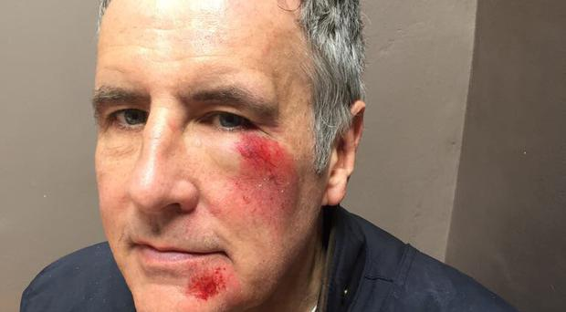 Journalist Dermot Murnaghan revealed on Twitter injuries he sustained in a hit and run incident.