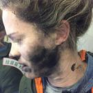 The passenger suffered burns to her face, neck and hands (Australian Transport Safety Bureau)