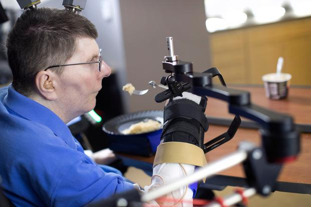 Bill Kochevar using thought-controlling technology to move his right arm and hand after eight years. PA