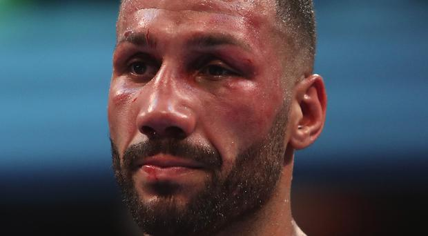 Outboxed: DeGale was taken to hospital after the fight