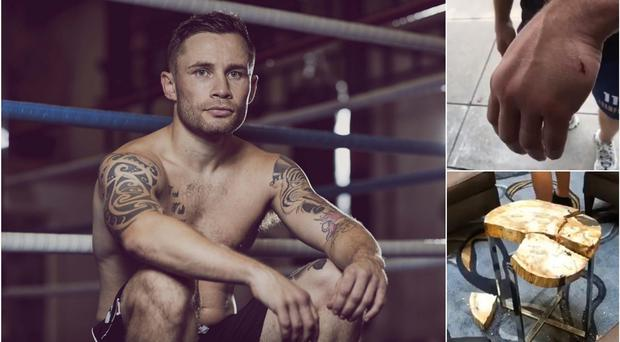 Carl Frampton has been forced to withdraw from his fight against Emmanuel Dominguez this weekend after suffering a freak hand injury in a hotel lobby.