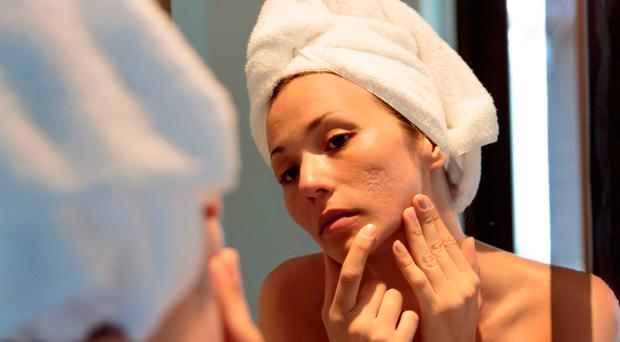 Spot of bother: the return of acne in adulthood can be a real pain