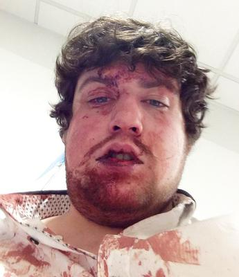 Alan after the vicious attack